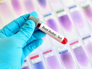 blood test as one of the tests to determine bac in a dui explained by a phoenix dui lawyer